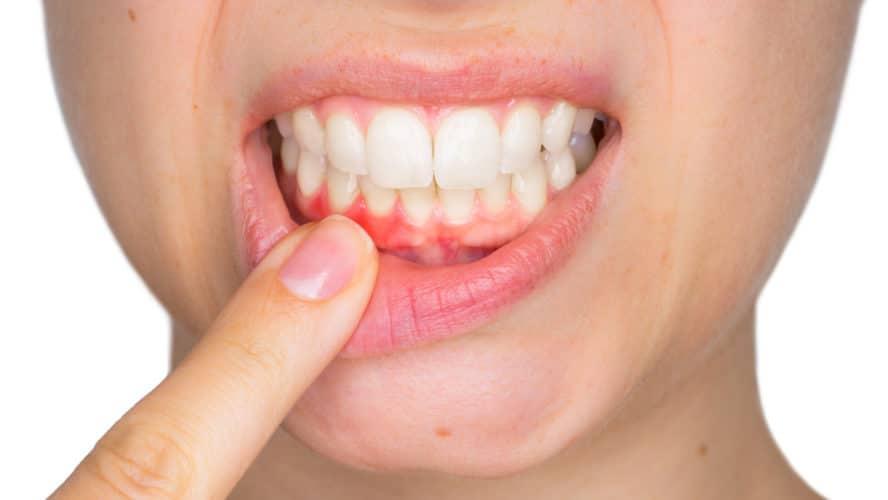 Eine Frau zeigt ihre Zähne und Zahnfleisch her. Das Zahnfleisch ins etwas entzunden.